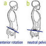 """Tuck"" And Pelvic Tilt Talk: Part 2 of 5"